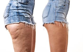 Cellulite entsteht durch eine Übersäuerung des Körpers Quelle: shutterstock